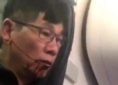 A United Airlines kártérítésben állapodott meg a repülőgépről levonszolt utassal
